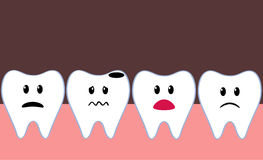Bad tooth Royalty Free Stock Photography