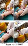 badanie krwi Zdjęcia Stock