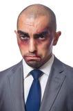 Badly beaten businessman. Isolated on white stock image