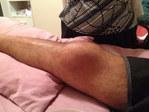 Badly bruised knee cap Royalty Free Stock Images