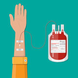 Bag with blood and hand of donor. donation concept Stock Photo