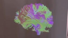 Bagnoli - Panoramica dell`immagine del cervello proiettata sul muro