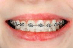 Bagues dentaires en gros plan pendant le traitement en art dentaire d'Aesthetic d'orthodontiste photographie stock libre de droits