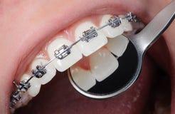 Bagues dentaires en gros plan sur des dents Demande de règlement orthodontique Images stock