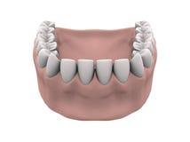 Baje los dientes con las gomas Foto de archivo libre de regalías