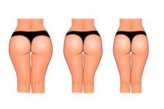 Bakdelar av kvinnor isolerad kvinna för white för vikt för förlustmåtttorso Kondition jämförelse vektor illustrationer