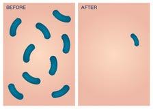 Bakterien auf Haut, vorher nachher Stockfoto