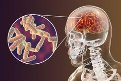 Bakteryjnej móżdżkowej infekci medyczny pojęcie, meningitis, zapalenie mózgu Zdjęcia Royalty Free