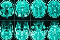 Balayage d'IRM de la tête et du cerveau d'une personne photographie stock