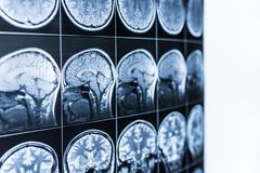 Balayage d'IRM de la tête et du cerveau d'une personne dans le defocus image stock