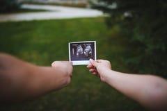 Balayage d'ultrason de bébé dans des mains sur le bakcground vert Photos stock