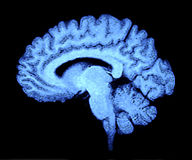 Balayage de cerveau images stock