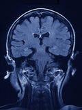 Balayage de cerveau de MRI Photo libre de droits