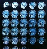 Balayage de cerveau de MRI Image libre de droits