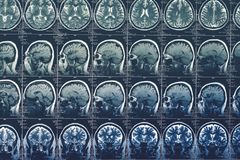 Balayage de cerveau, IRM ou rayon X ou image de résonance magnétique de tête Concept de tomographie de neurologie image stock