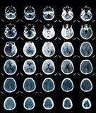 Balayage de CT de cerveau Images libres de droits