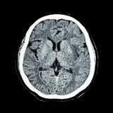 Balayage de CT de cerveau : cerveau de s montrez humain normal '(le tomodensitogramme) photographie stock