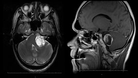 Balayage de mri de cerveau d'homme de vie r?elle avec l'animation courante de reseach de n?oplasme de tumeur de nouvelle de quali clips vidéos