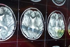 Balayage de résonance magnétique du cerveau avec le crâne Balayage de chef d'IRM sur le fond foncé photo stock