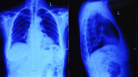 Balayage de radiographie de la poitrine illuminé par la lumière bleue Photo stock