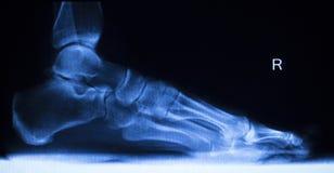 Balayage de rayon X de blessure de pied et d'orteils photographie stock
