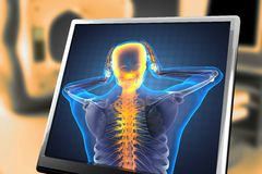Balayage humain de radiographie Image libre de droits