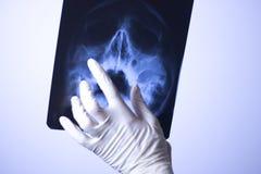 Balayage médical de visage de rayon X Image libre de droits