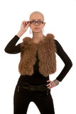 Bald girl Stock Image