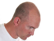 Bald guy looking down. This Angry middle-aged man could be mad because he has no hair or because he lost his job.  You decide Stock Photo