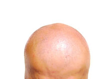 Bald head Stock Photography