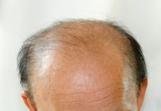 Bald head man Royalty Free Stock Photography