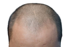Bald head. The bald head on the white background Royalty Free Stock Photo