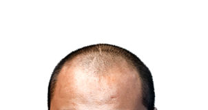 Bald head. The bald head on the white background Stock Photos