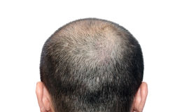 Bald head. The bald head on the white background Royalty Free Stock Photography
