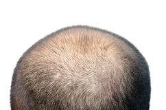 Bald head. The bald head on the white background Royalty Free Stock Image