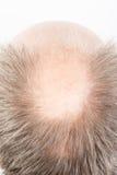 Bald head Stock Photos