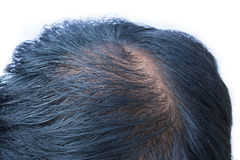 Bald head of young man Stock Images