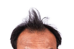 Bald head of young man Royalty Free Stock Photography