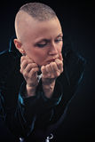 Bald-headed girl Royalty Free Stock Photography
