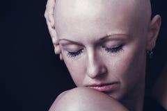 Bald-headed Stock Photos