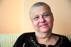 Bald (ill) woman. Portrait of bald woman who is cancer Stock Images