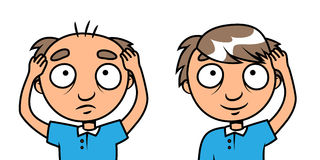 Bald man - hair loss treatment. Cartoon vector illustration of a bald man with new hair vector illustration