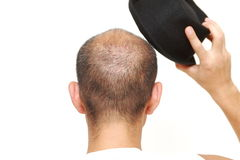 Bald man with a hat Royalty Free Stock Image