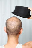 Bald man with a hat Stock Image