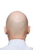 Bald man head Royalty Free Stock Photo