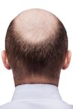 Bald man head Stock Photos