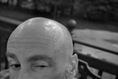 Bald man winking with enlarged temple vein. Bushy eyebrows, sideburns but a shaved scalp spies to his left.  Pulsing throbbing vein in head royalty free stock images