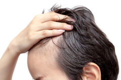 Bald man or woman worry about his or her less hairline Royalty Free Stock Image