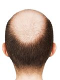 Bald men head Stock Photos