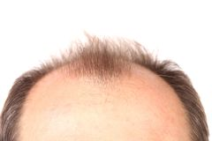 Bald men. On a white background Stock Images